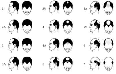 Hajátültetés férfiaknak, kopaszodás