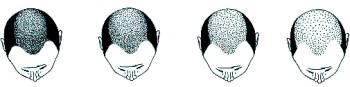 Hajátültetés férfiaknak - az átültetés