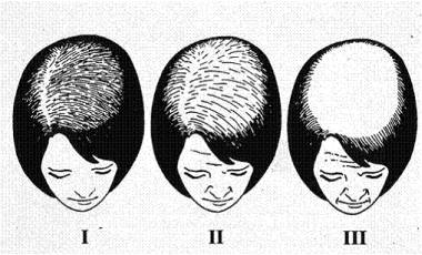 Hajátültetés nőknek - a hajátültetés lépései