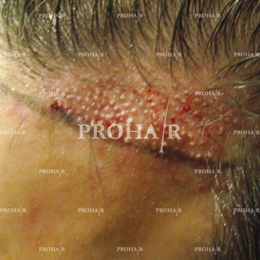 PROHAIR-hair-transplant-clinic-1000-FUE-01