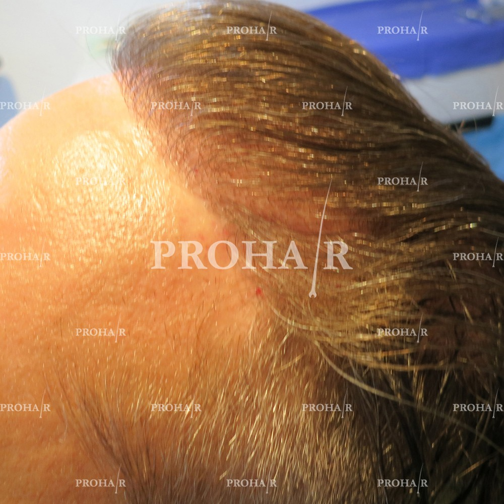 PROHAIR-hair-transplant-clinic-1000-FUE-02