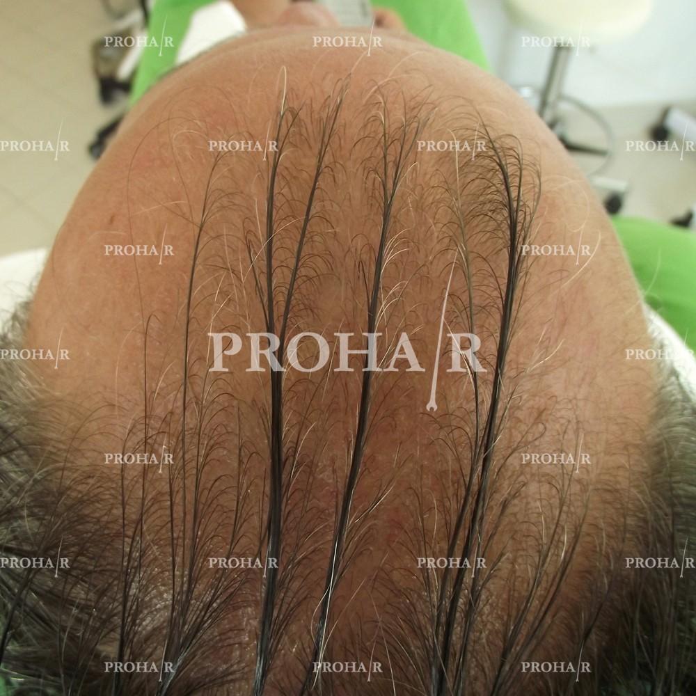 PROHAIR-hair-transplant-clinic-1000-NLHT-01