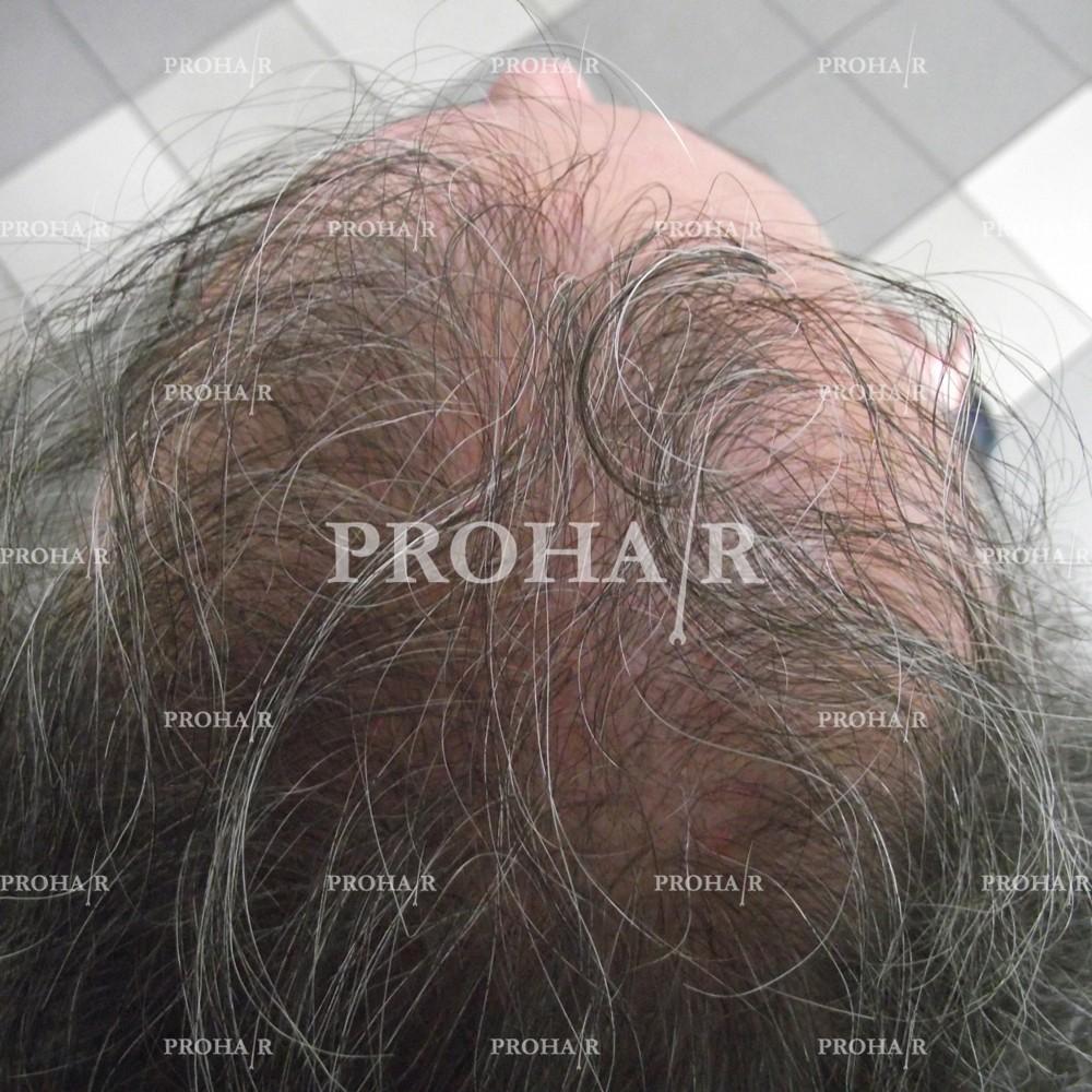 PROHAIR-hair-transplant-clinic-1000-NLHT-02