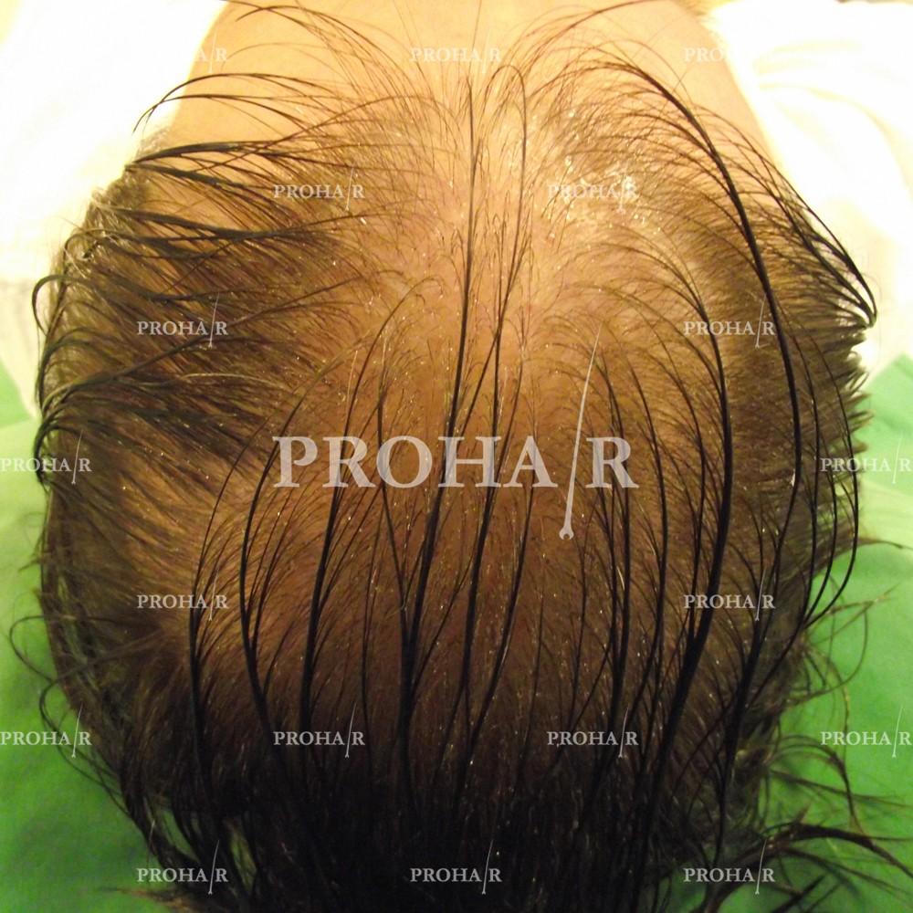PROHAIR-hair-transplant-clinic-1000-NLHT-03