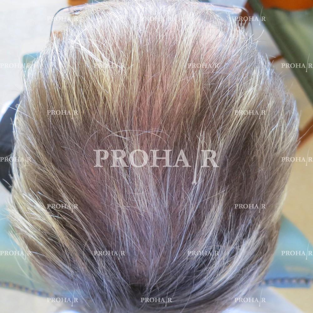 PROHAIR-hair-transplant-clinic-1000-NLHT-04
