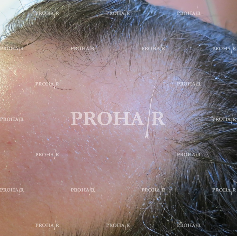 PROHAIR-hair-transplant-clinic-1500-FUE-01