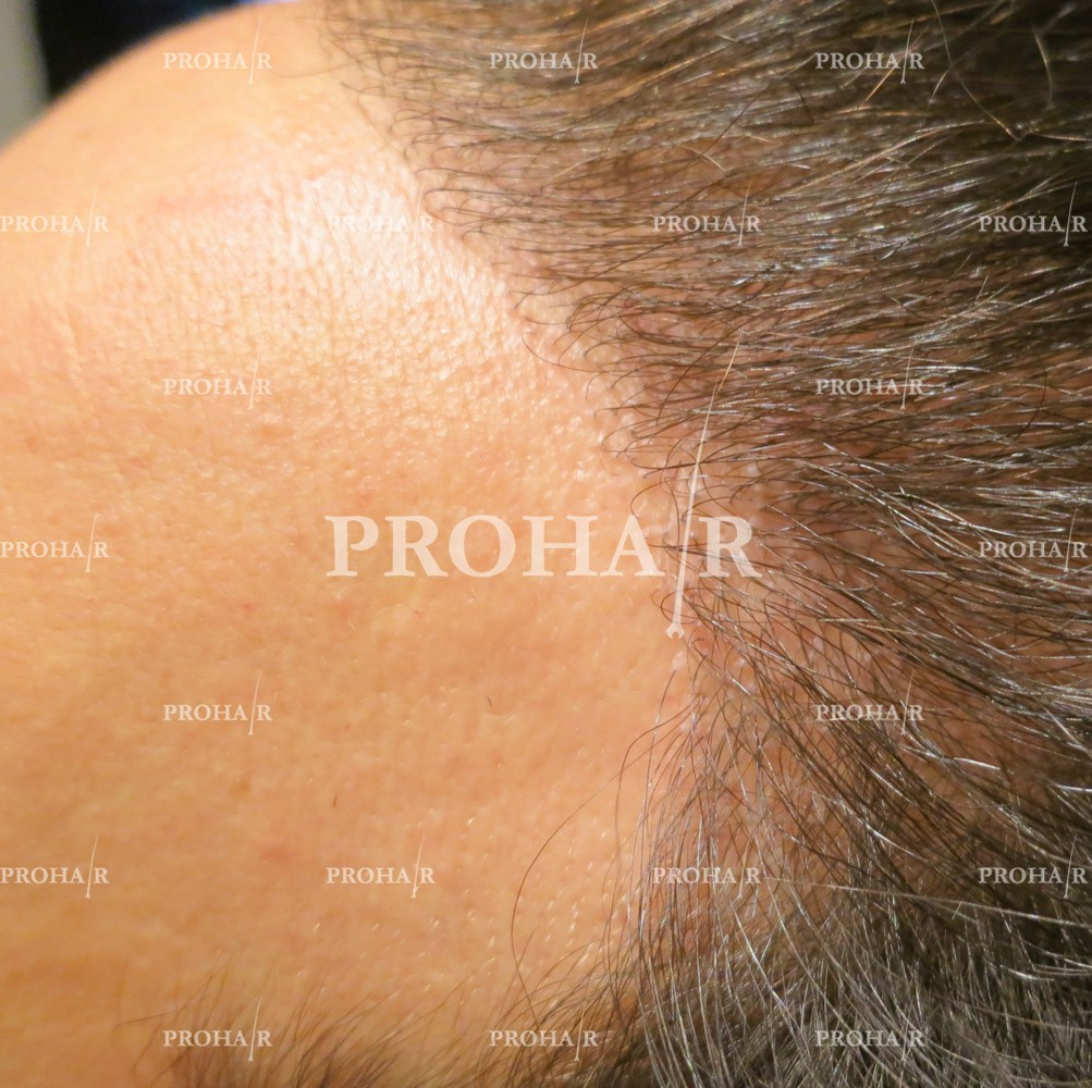 PROHAIR-hair-transplant-clinic-1500-FUE-02