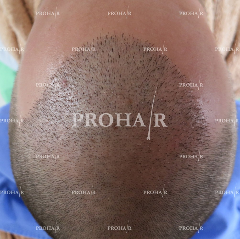 PROHAIR-hair-transplant-clinic-1500-FUE-04