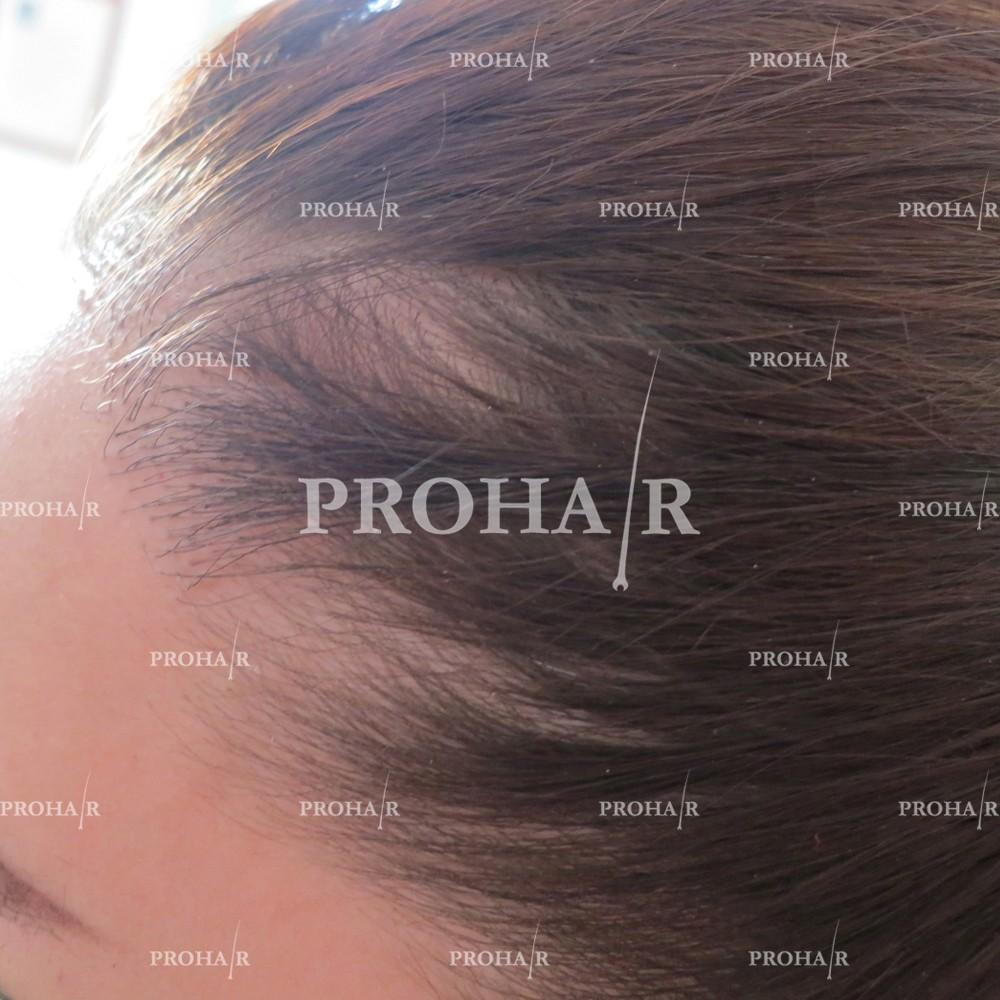 PROHAIR-hair-transplant-clinic-1500-NLHT-03