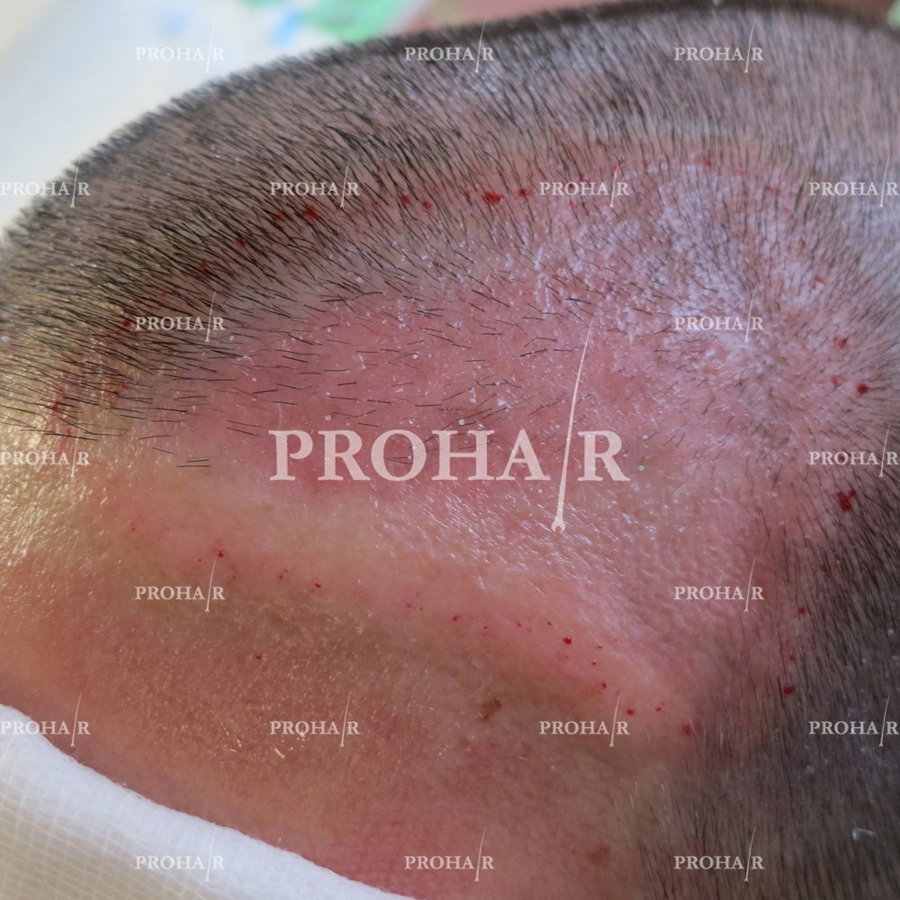 PROHAIR-hair-transplant-clinic-1600-FUE-01
