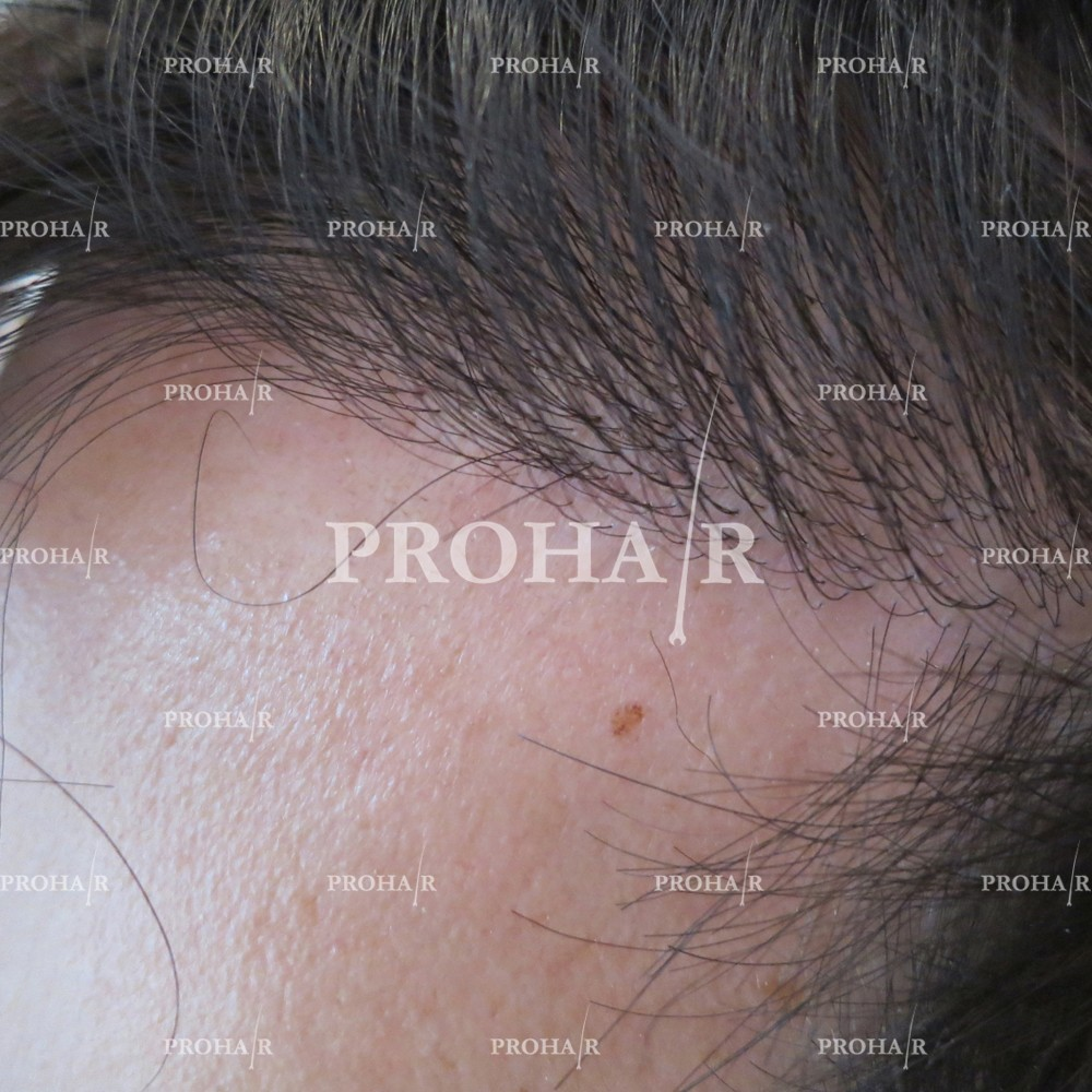 PROHAIR-hair-transplant-clinic-1600-FUE-02