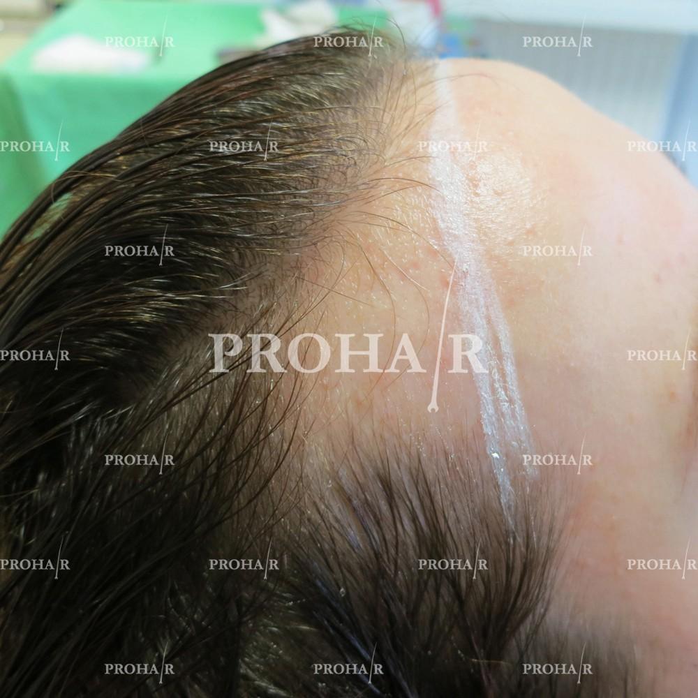 PROHAIR-hair-transplant-clinic-2000-NLHT-01