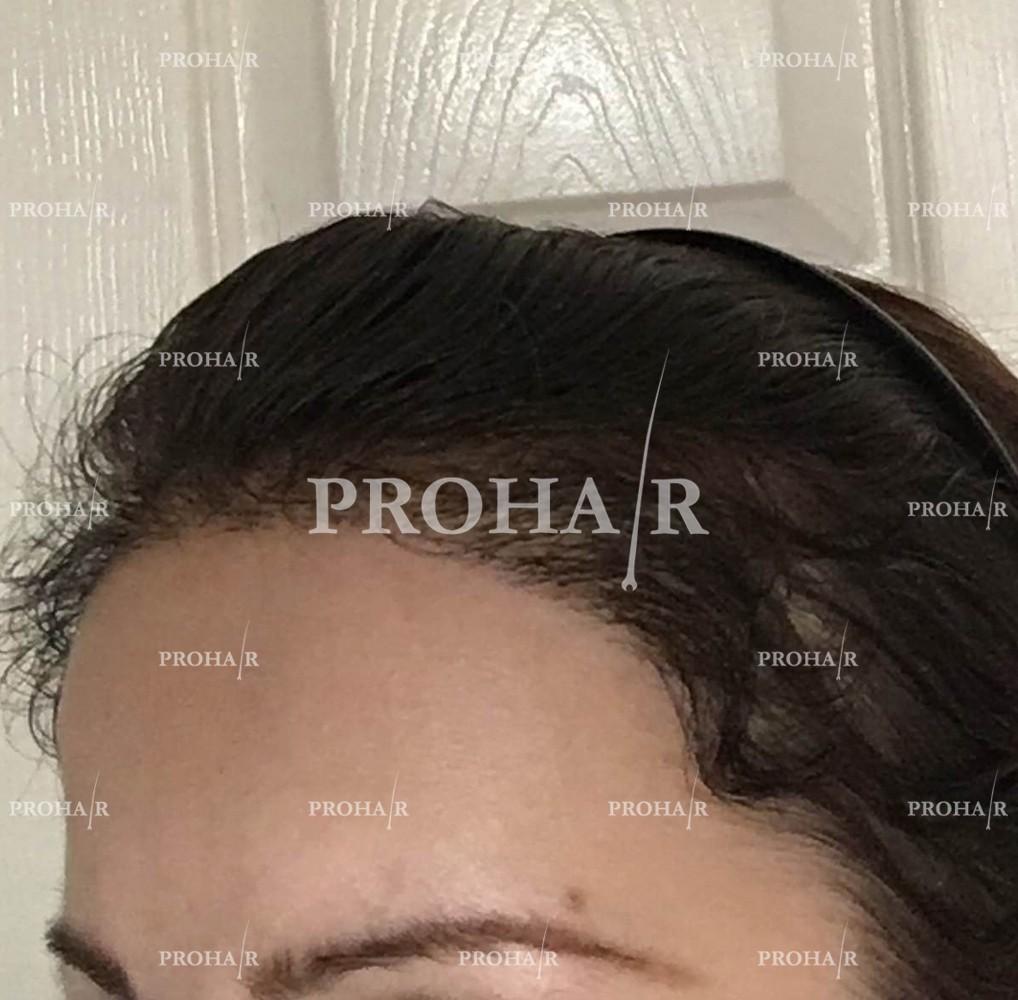 PROHAIR-hair-transplant-clinic-2000-NLHT-04