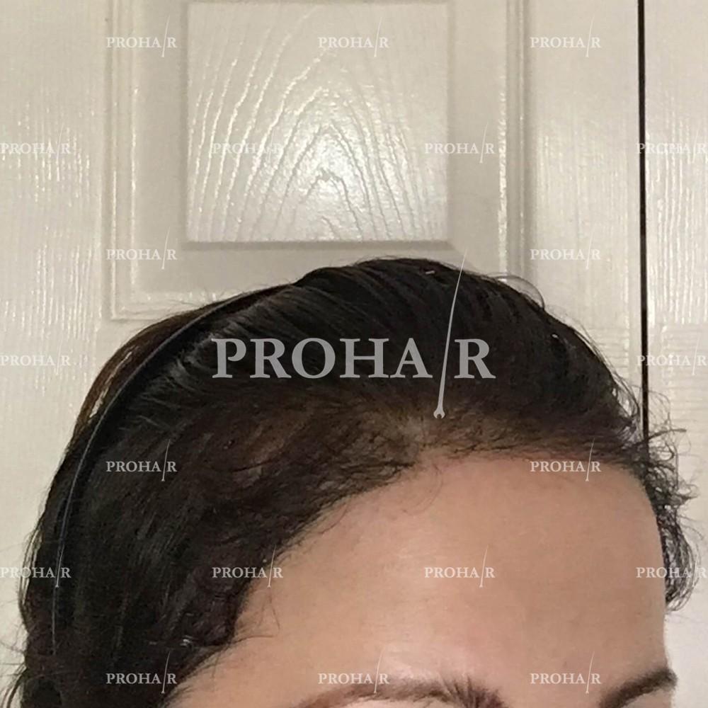 PROHAIR-hair-transplant-clinic-2000-NLHT-05