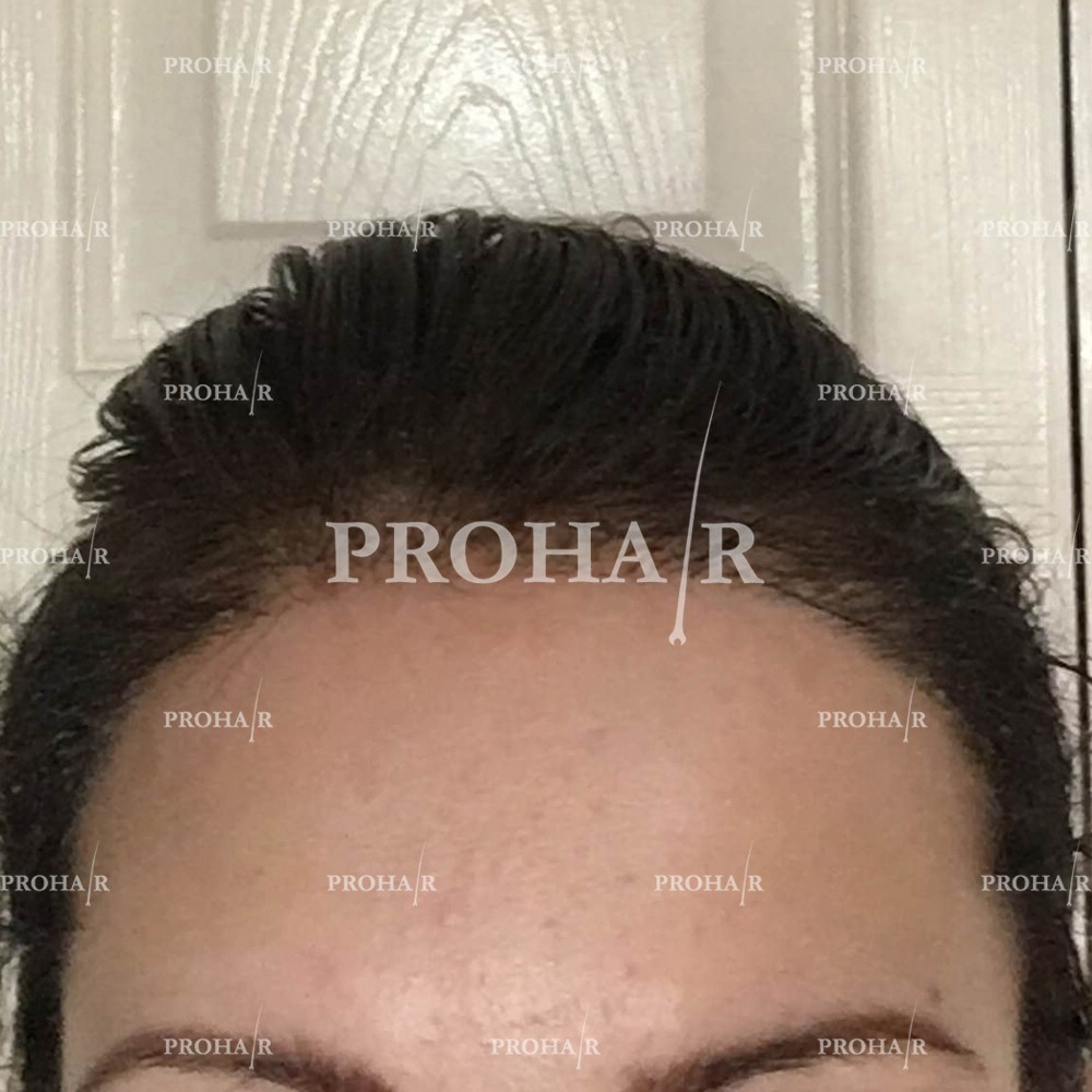 PROHAIR-hair-transplant-clinic-2000-NLHT-06