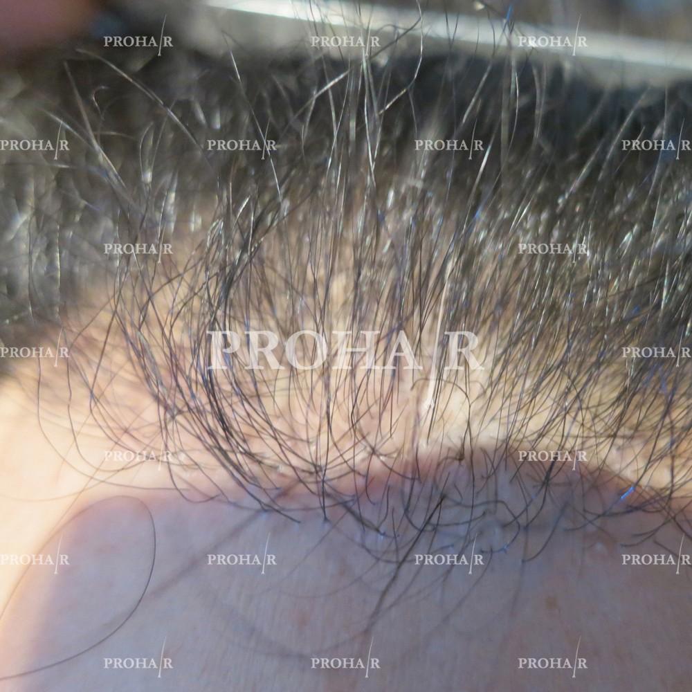 PROHAIR-hair-transplant-clinic-2000-NLHT-09