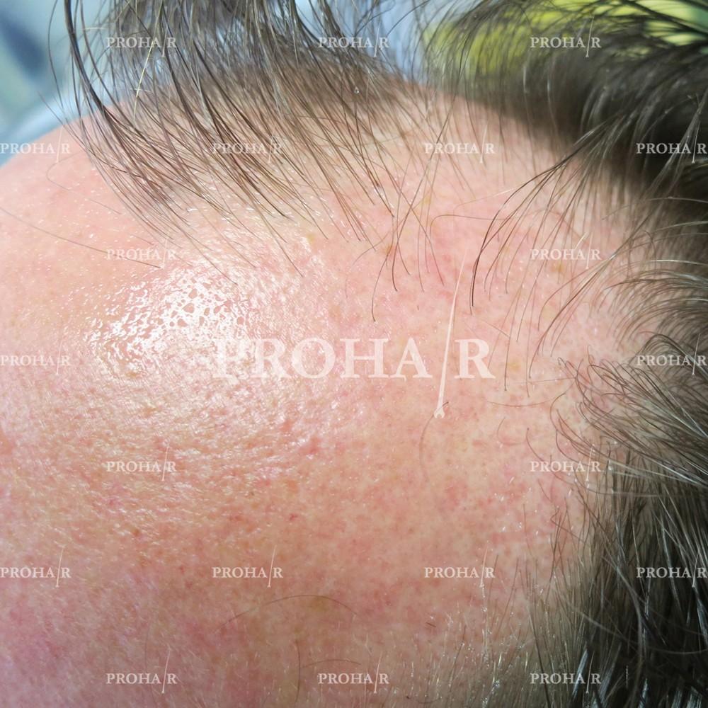 PROHAIR-hair-transplant-clinic-2000-NLHT-11