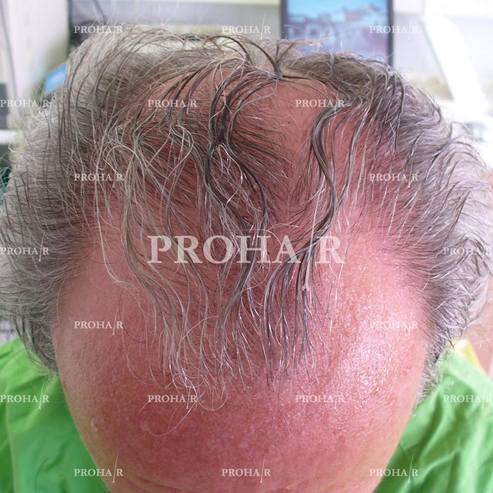 PROHAIR-hair-transplant-clinic-2000-NLHT-13
