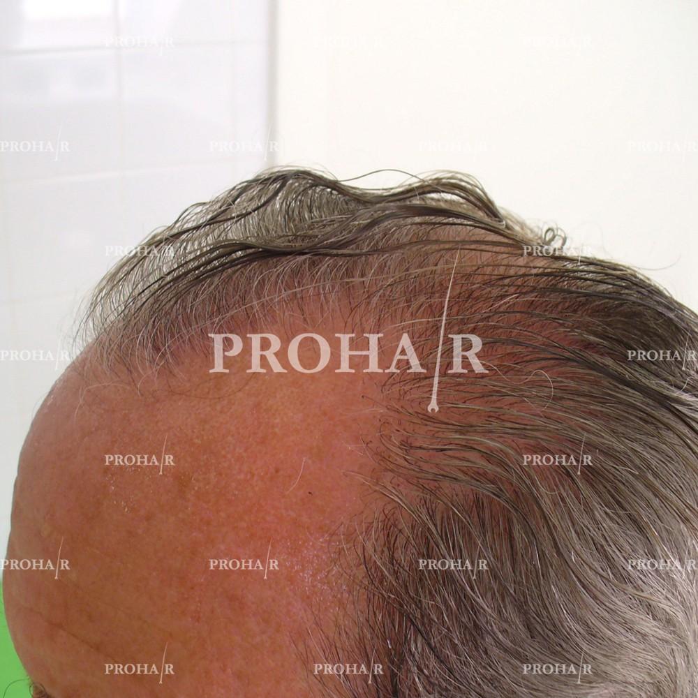 PROHAIR-hair-transplant-clinic-2000-NLHT-14