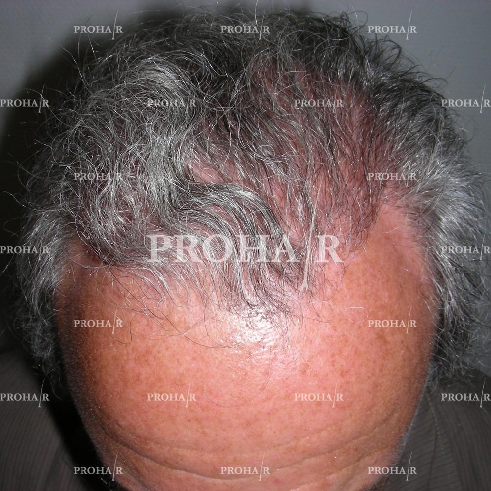 PROHAIR-hair-transplant-clinic-2000-NLHT-15