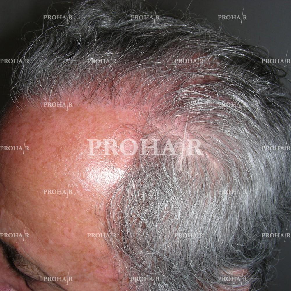 PROHAIR-hair-transplant-clinic-2000-NLHT-16