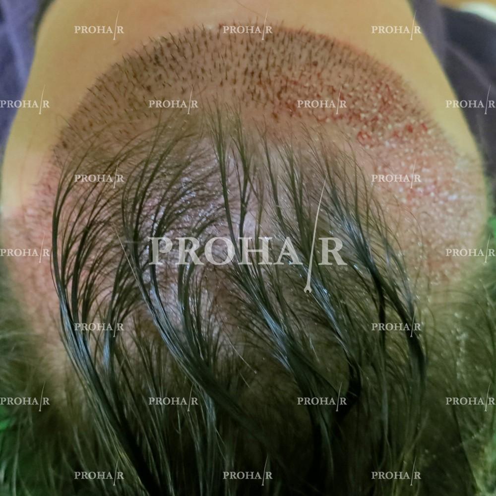 PROHAIR-hair-transplant-clinic-2000-NLHT-18