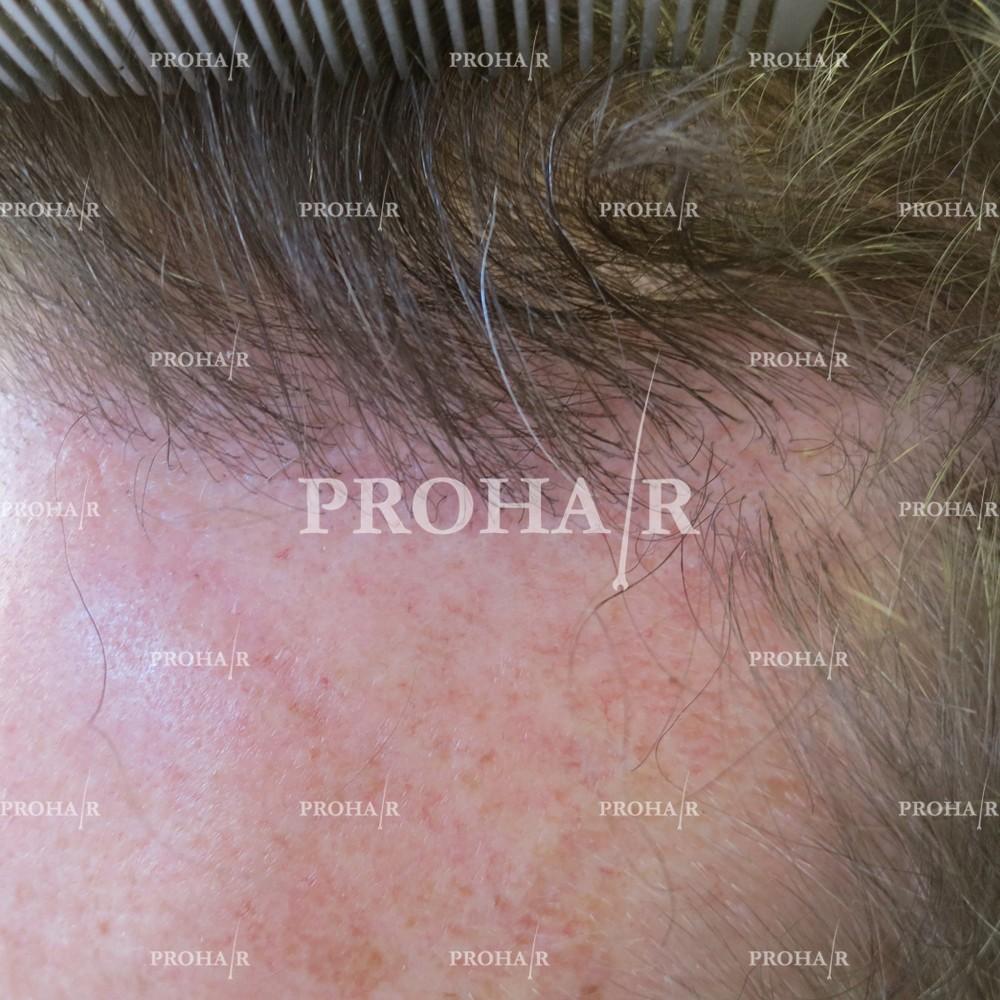PROHAIR-hair-transplant-clinic-2000-NLHT-21