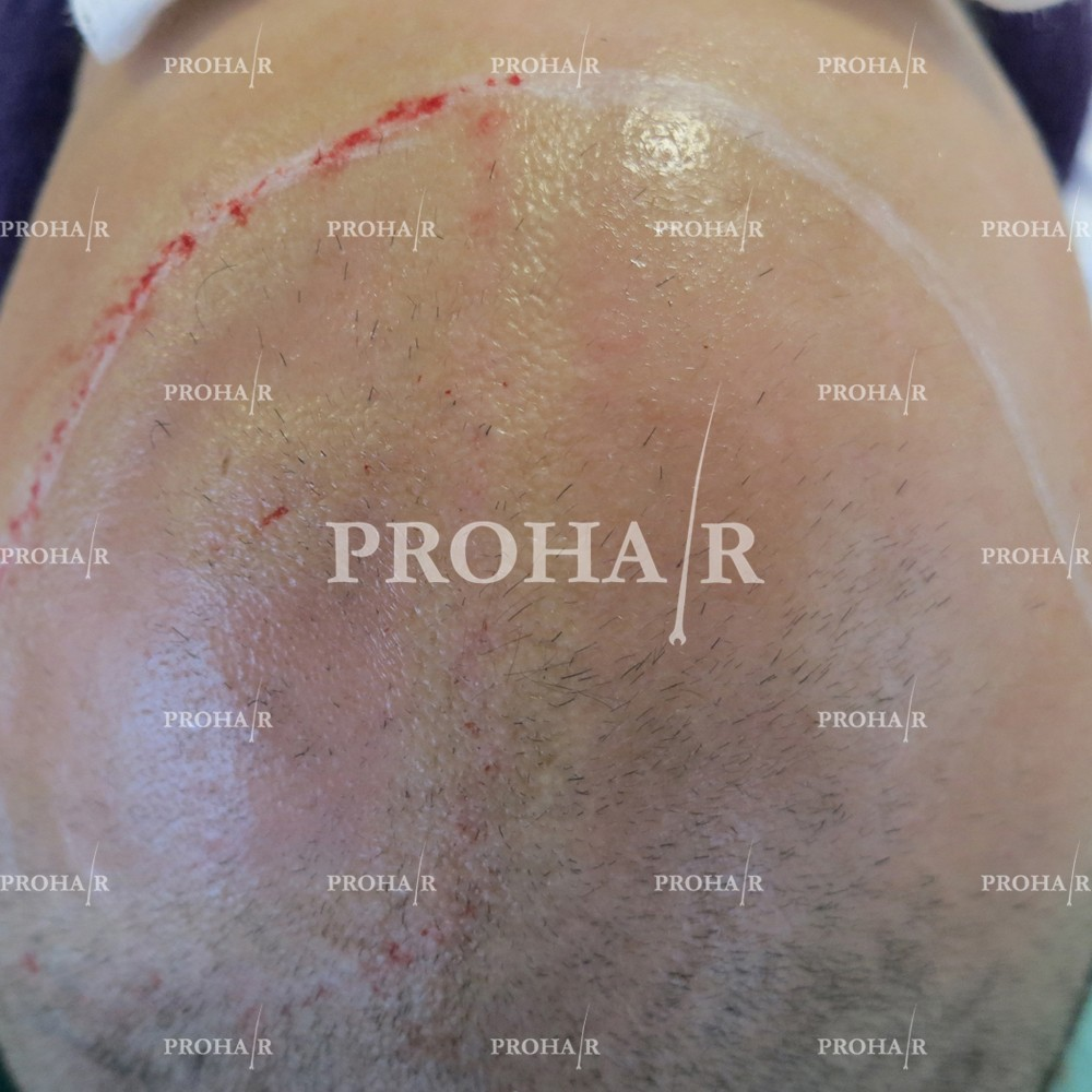 PROHAIR-hair-transplant-clinic-3000-FUE-01