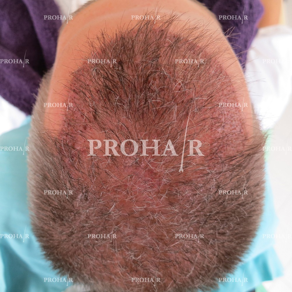 PROHAIR-hair-transplant-clinic-3000-FUE-03