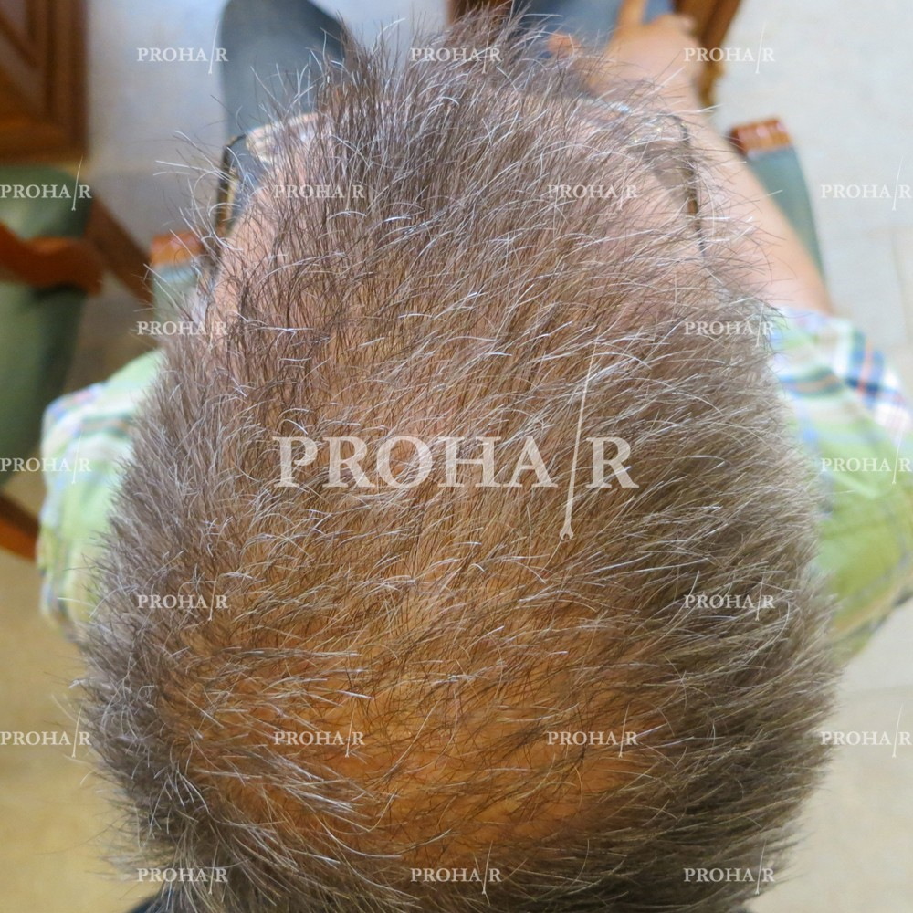 PROHAIR-hair-transplant-clinic-3000-FUE-04