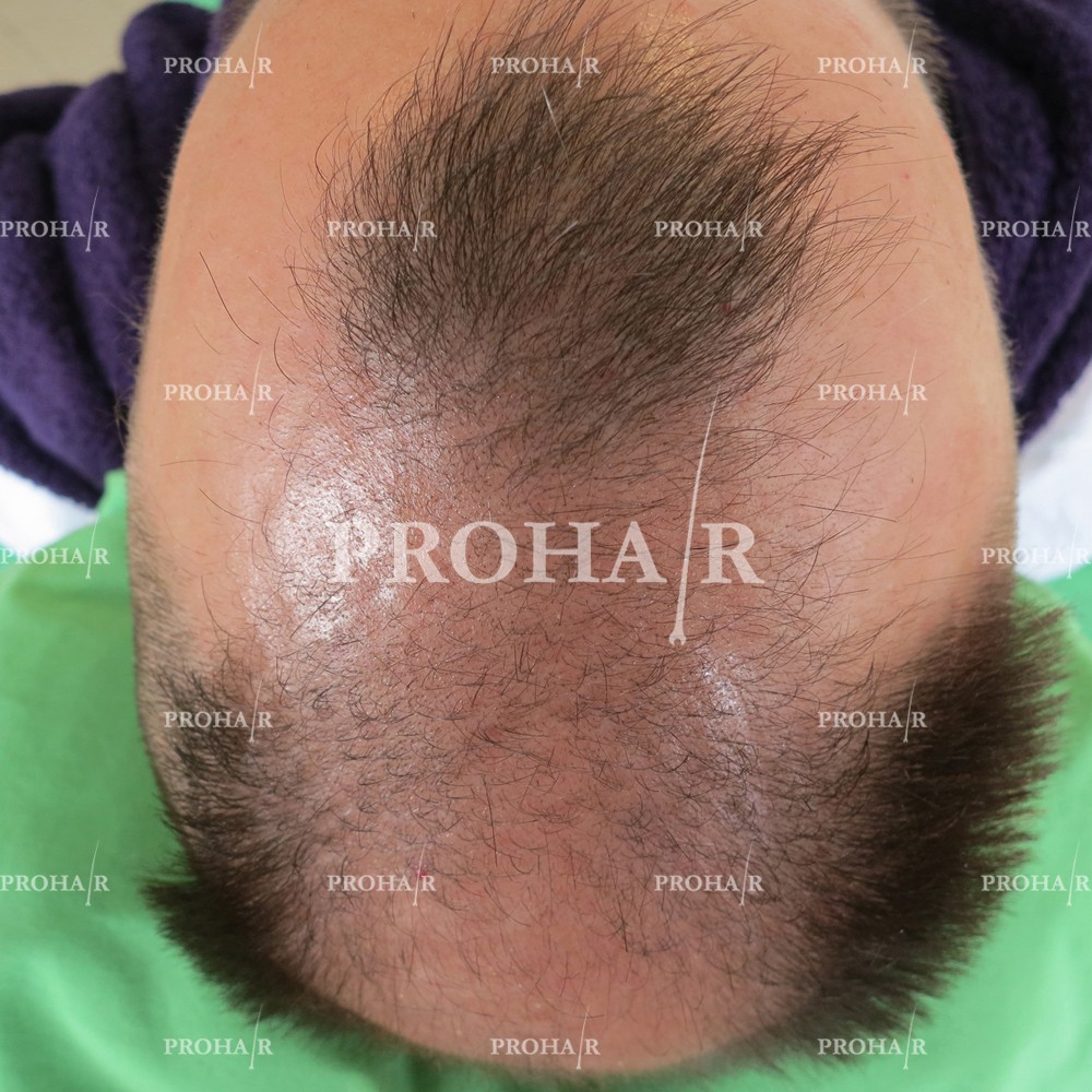PROHAIR-hair-transplant-clinic-3600-FUE-01