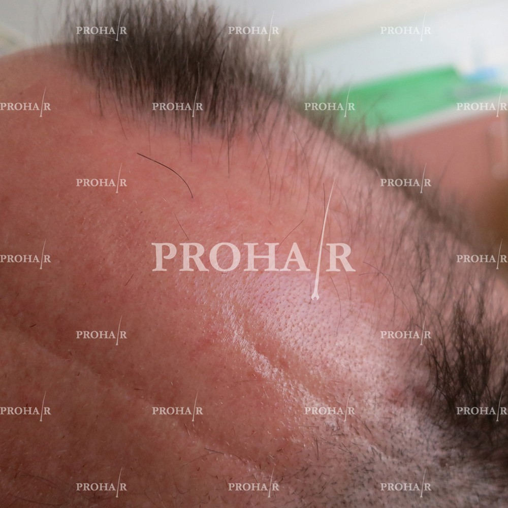 PROHAIR-hair-transplant-clinic-3600-FUE-02