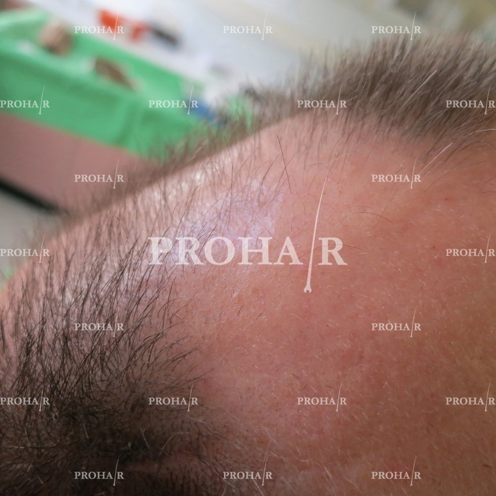 PROHAIR-hair-transplant-clinic-3600-FUE-03