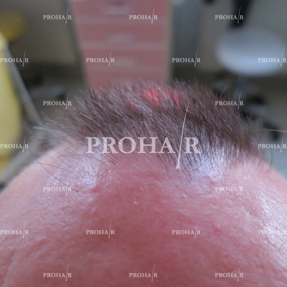PROHAIR-hair-transplant-clinic-3600-FUE-04