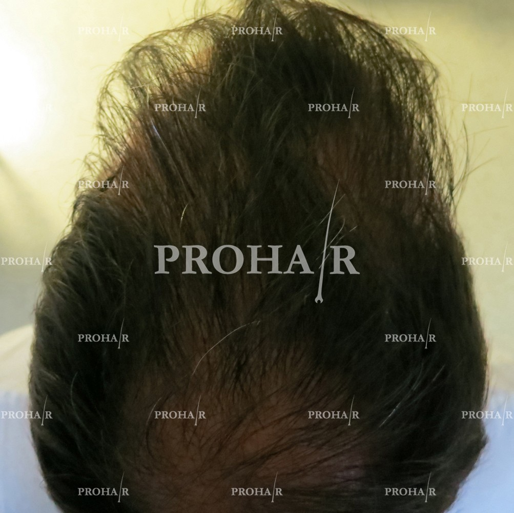 PROHAIR-hair-transplant-clinic-3600-FUE-05