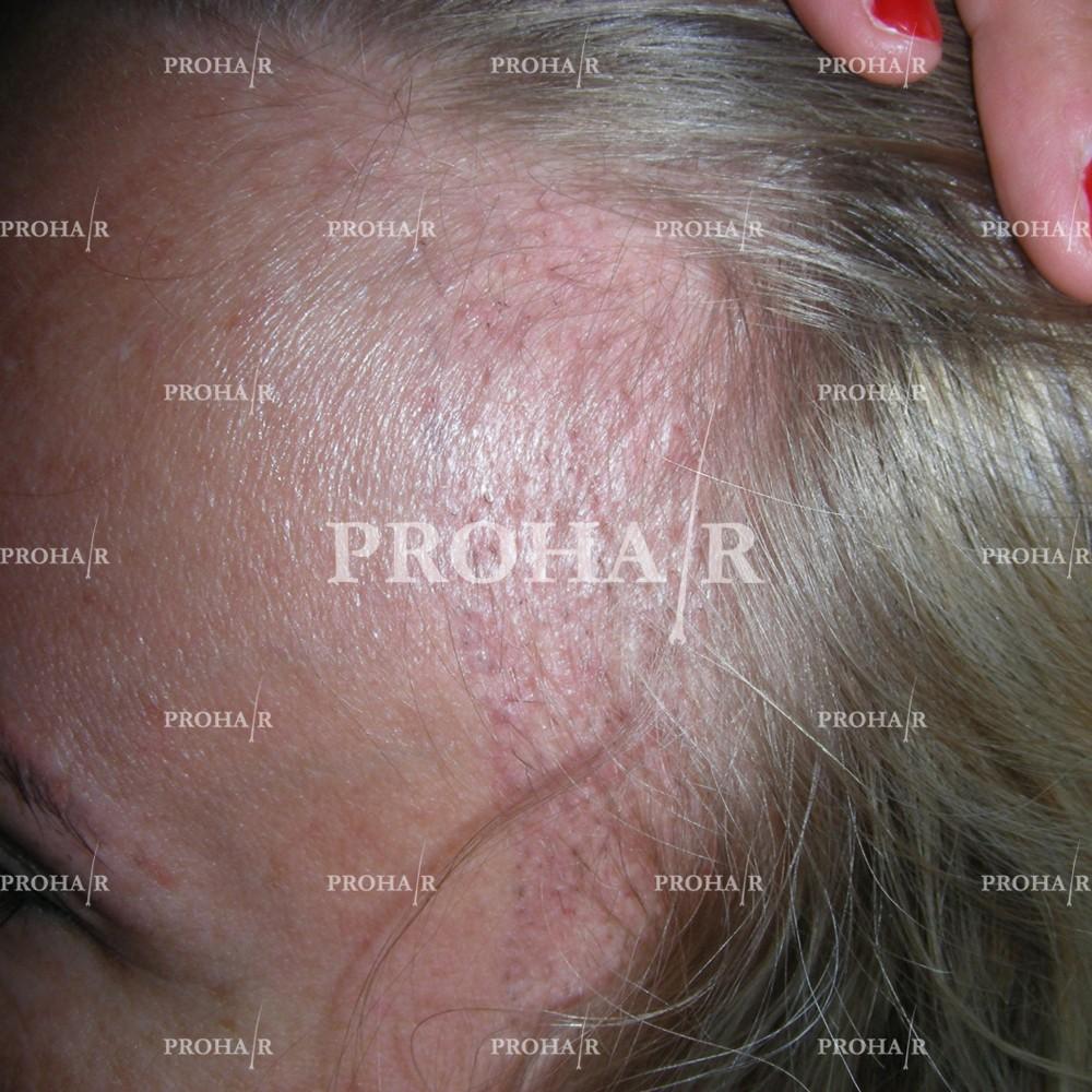 PROHAIR-hair-transplant-clinic-500-NLHT-01