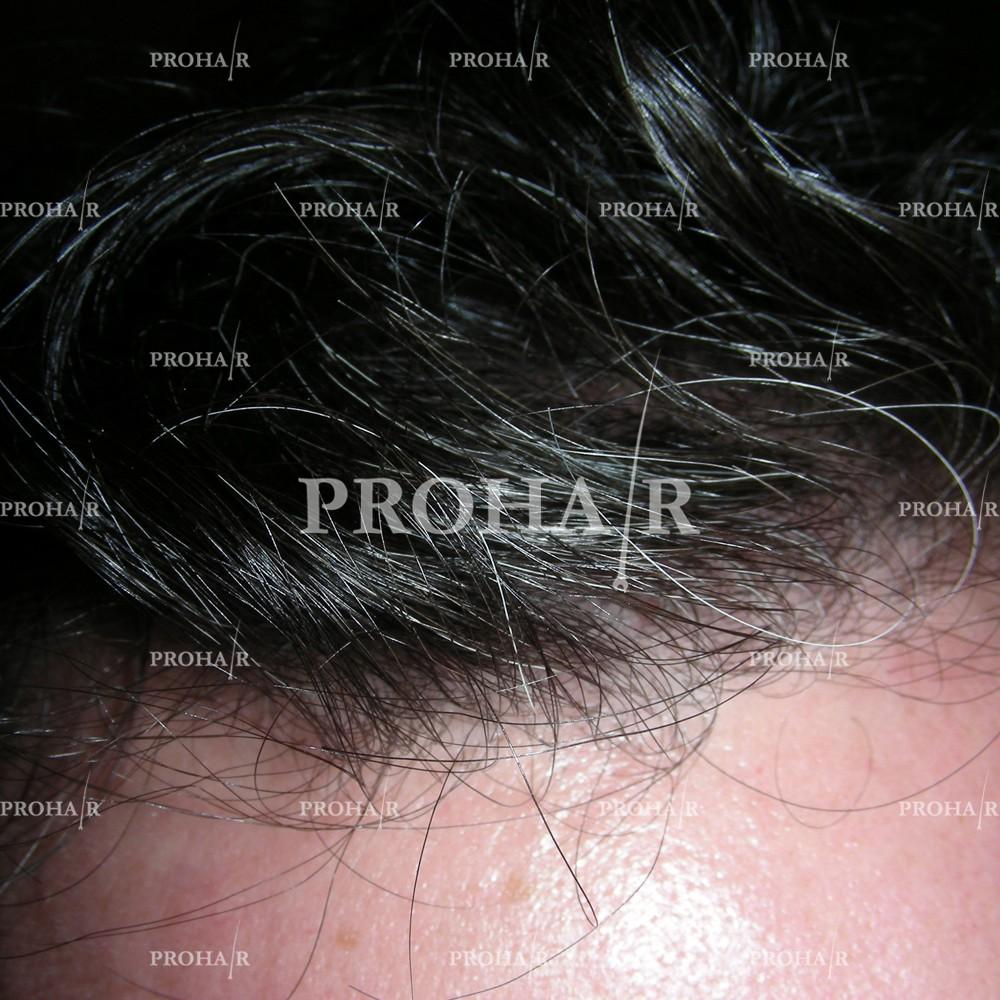 PROHAIR-hair-transplant-clinic-500-NLHT-04