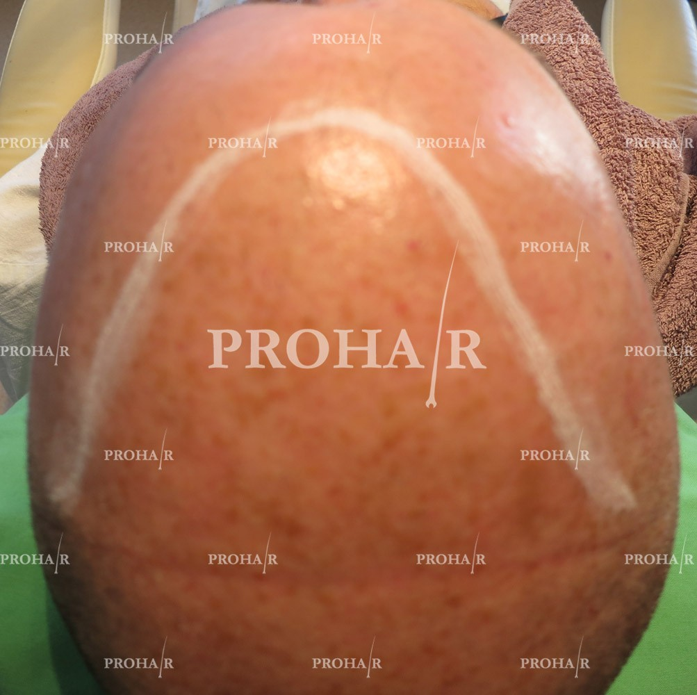 PROHAIR-hair-transplant-clinic-5000-FUE-01