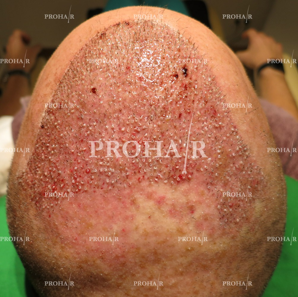 PROHAIR-hair-transplant-clinic-5000-FUE-02