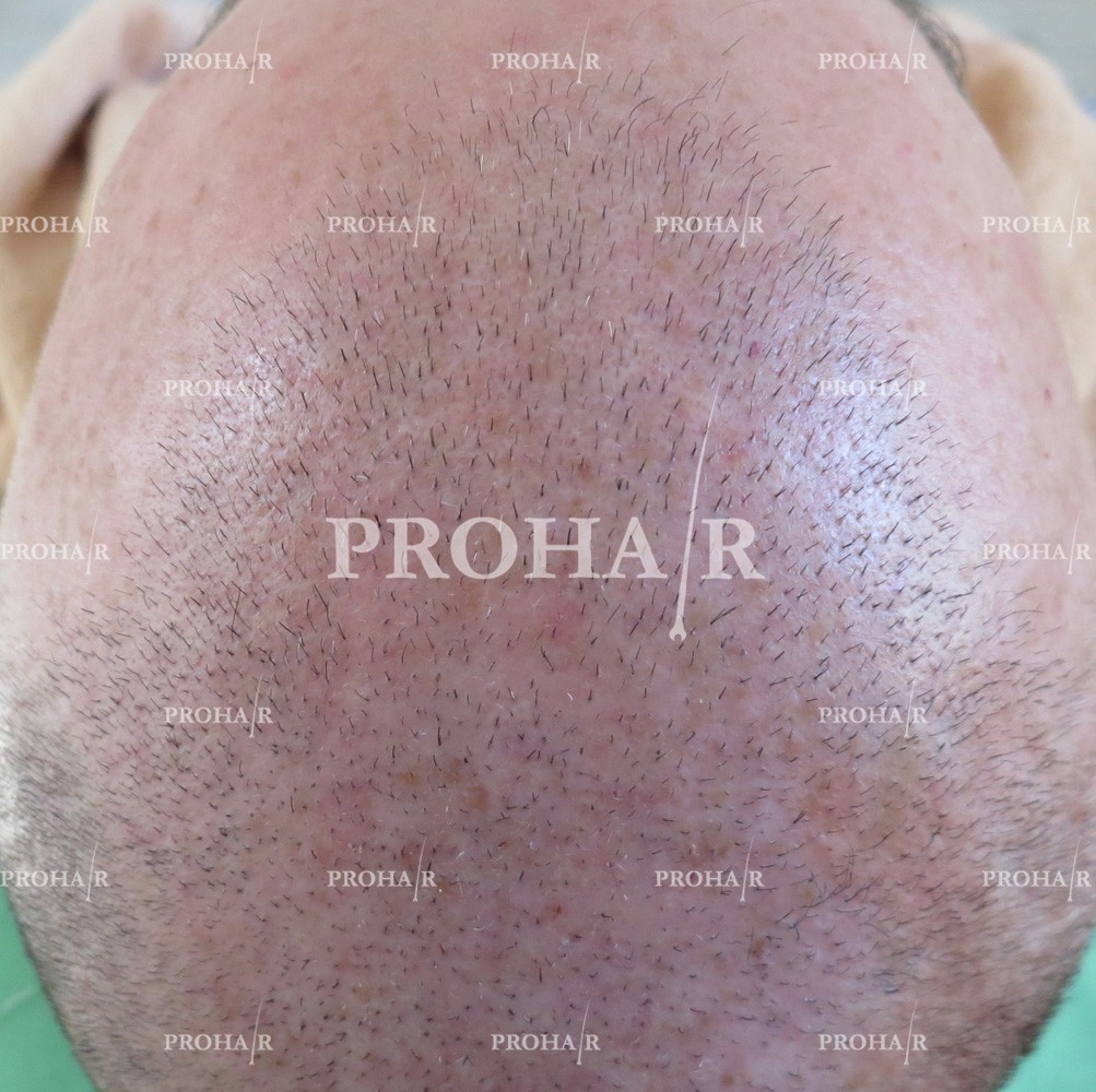 PROHAIR-hair-transplant-clinic-5000-FUE-03