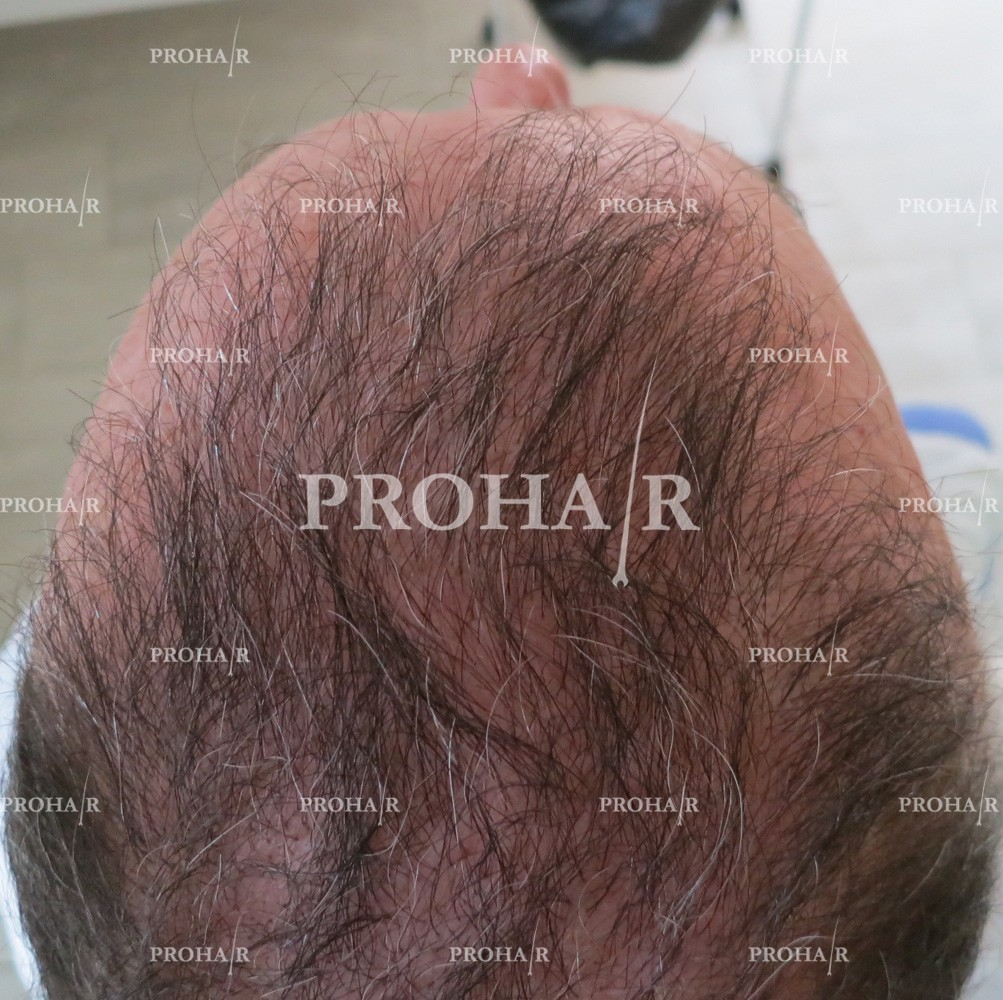 PROHAIR-hair-transplant-clinic-5000-FUE-04