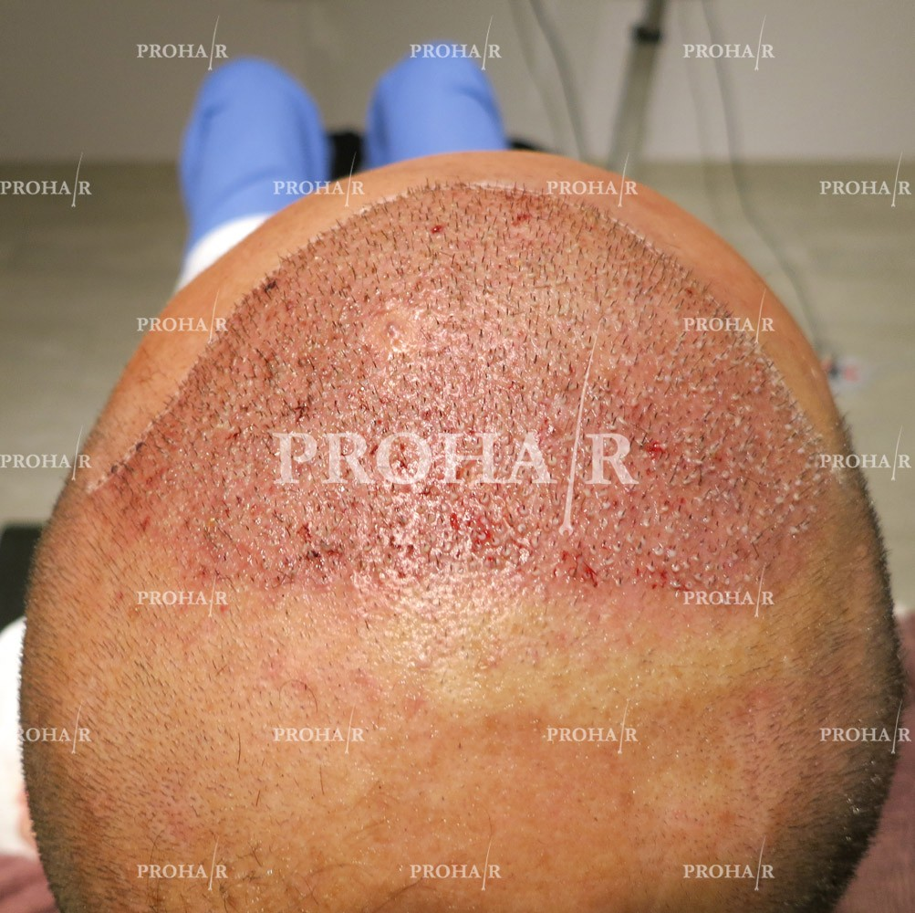 PROHAIR-hair-transplant-clinic-5000-FUE-05