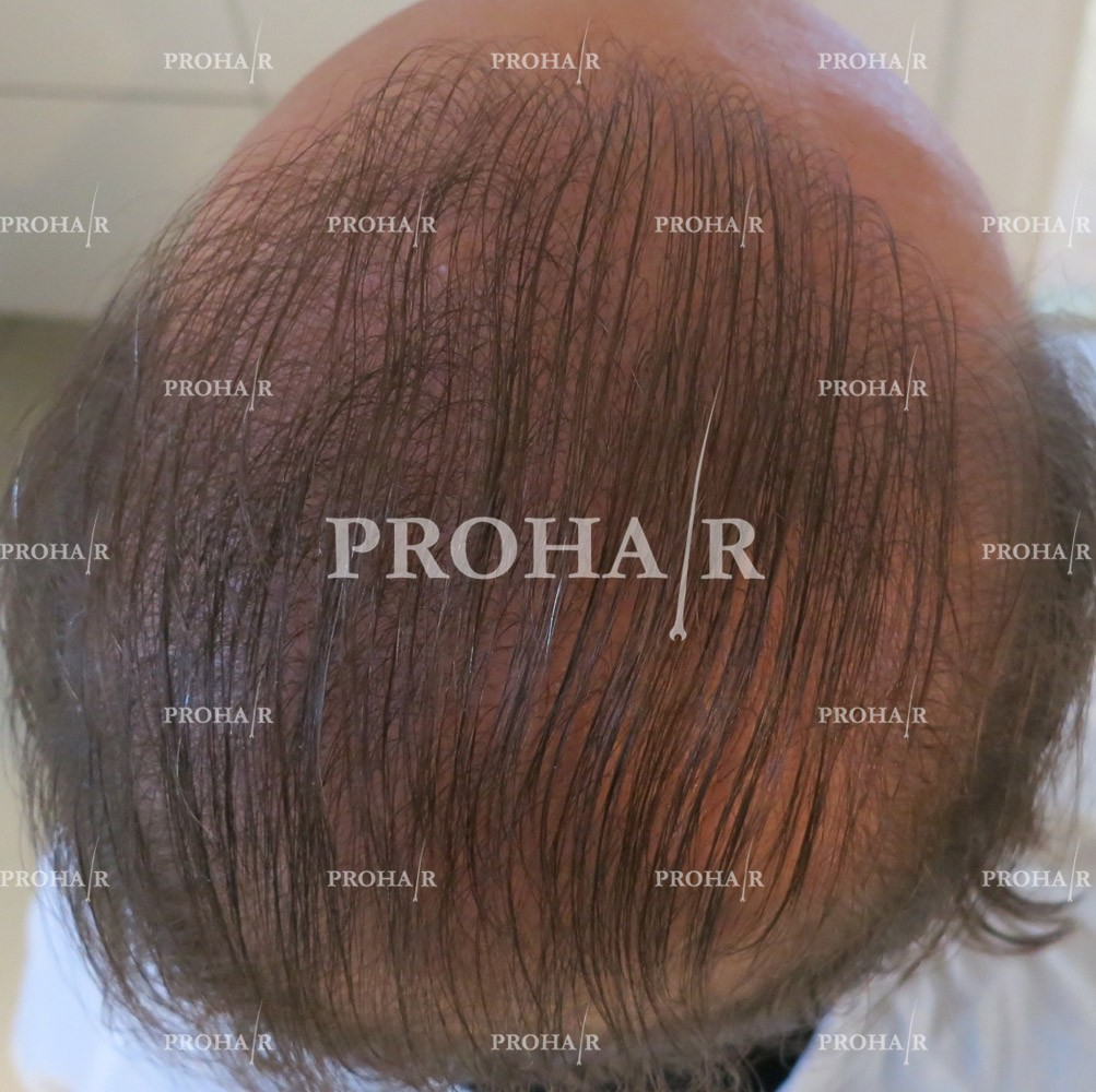 PROHAIR-hair-transplant-clinic-5000-FUE-06