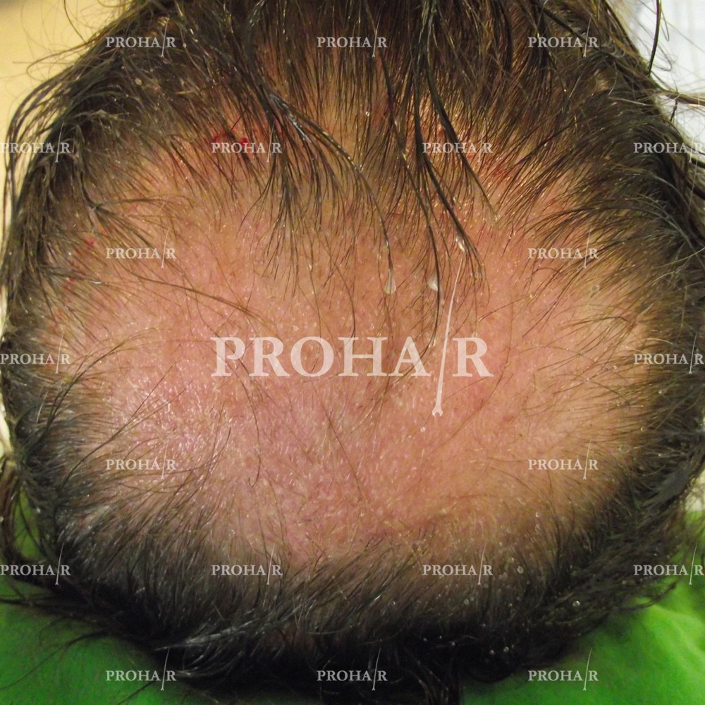 PROHAIR-hair-transplant-clinic-6000-FUE-01