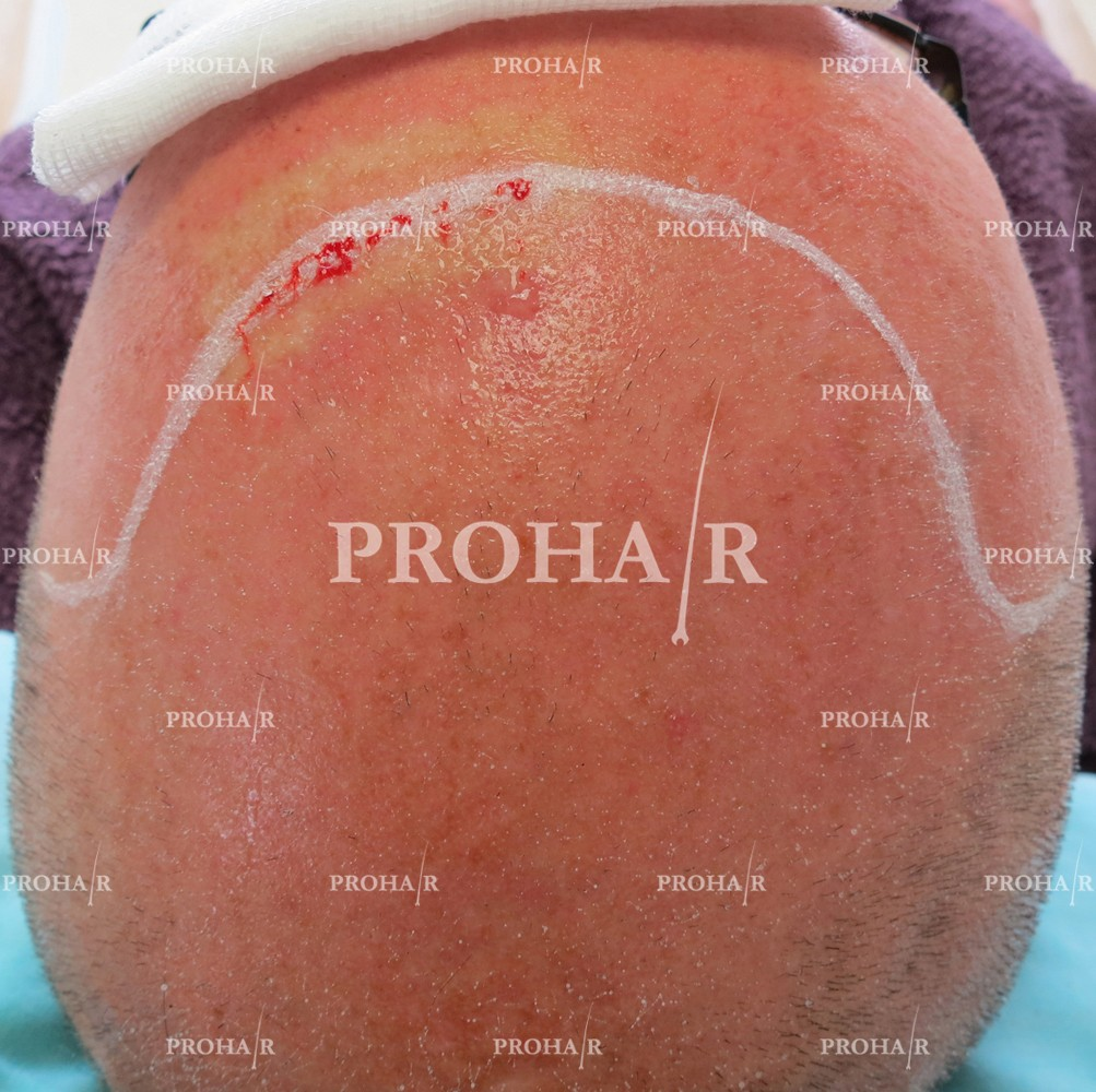 PROHAIR-hair-transplant-clinic-9000-FUE-01