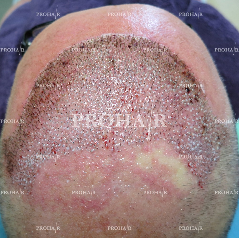 PROHAIR-hair-transplant-clinic-9000-FUE-02